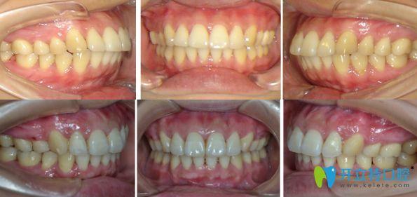 牙齿前突活动翼矫正前后对比图