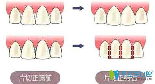 牙齿片切的危害
