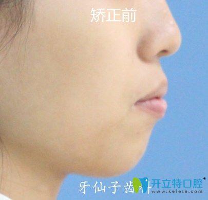 我在南京牙仙子齿科做隐形牙齿矫正1年半,成功改善了凸嘴