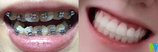 金属托槽牙齿矫正案例效果