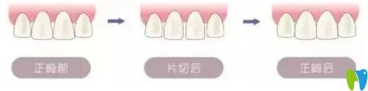 牙齿矫正是否需要片切