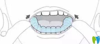 隐适美牙套摘除方法