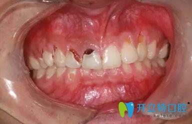 怎么预防可乐牙