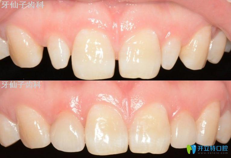 牙仙子齿科牙齿贴面修复前后对比图