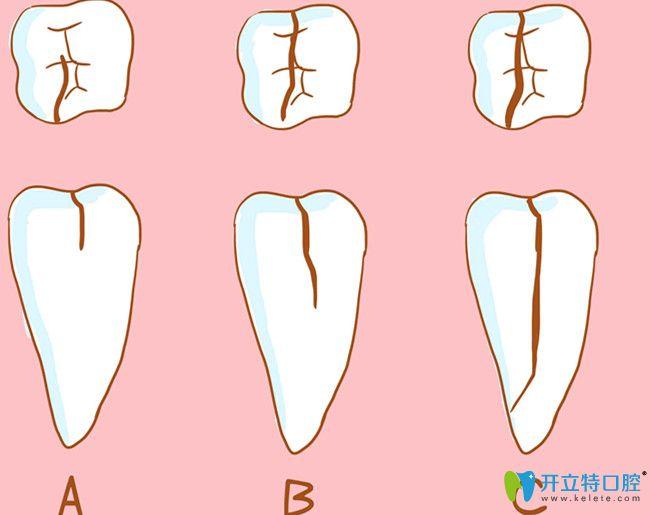 牙齿开裂造成的原因