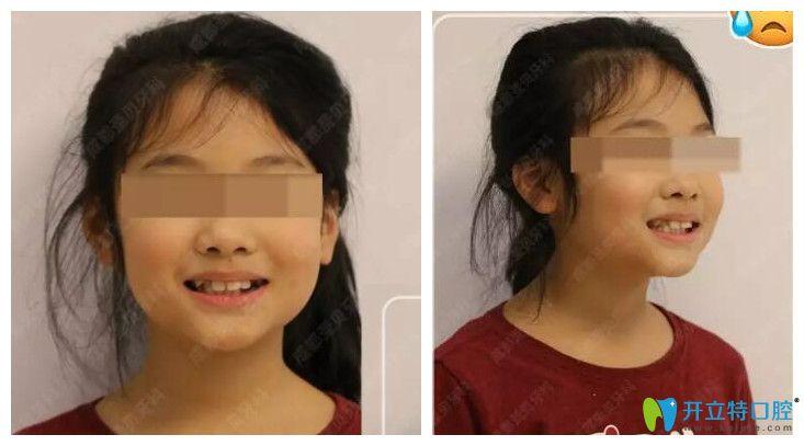 小孩轻微龅牙、个别牙反颌在成都圣贝口腔做正畸案例效果