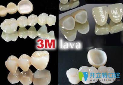 美国3Mlava拉瓦全瓷牙图