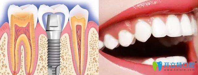 保定合众口腔牙齿修复+牙齿美白技术优势