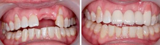 对比活动假牙和种植牙后决定在深圳好佰年口腔做即刻种植