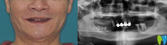 68岁老人在佛山智媄口腔做all-on-4全口种植牙重新圆了美食梦