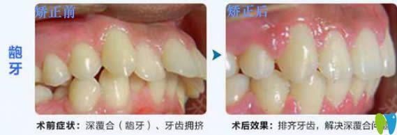 28岁顾客深覆合和龅牙矫正前后对比效果