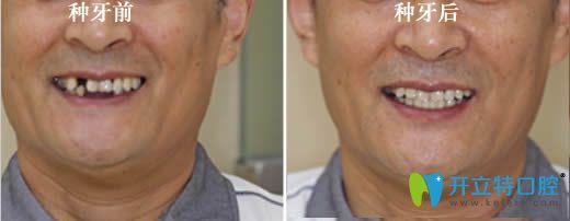 60岁老人半口种植牙前后对比案例