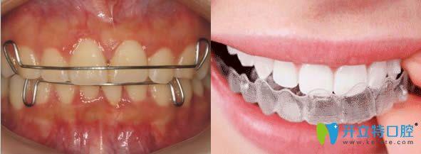 牙齿矫正后保持器图