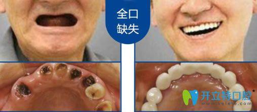深圳诺德齿科鲍立峰全口种植牙真实案例图
