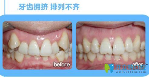 深圳诺德文梁医生牙齿拥挤矫正前后对比效果
