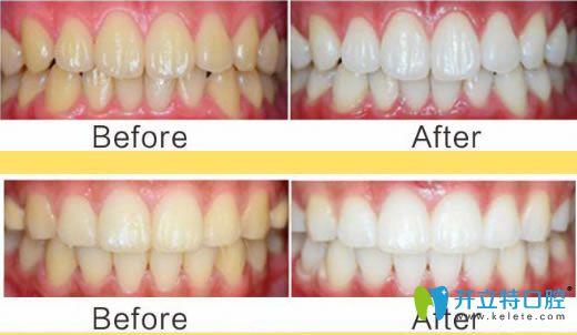 诺德齿科成人洗牙前后对比效果