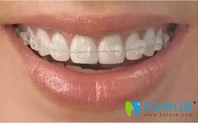 美国3M牙套和普通牙套区别和价格汇总