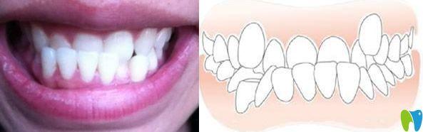 地包天牙齿形成的原因及矫正方法