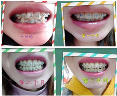 云南华美美莱口腔做正畸三个月的变化过程