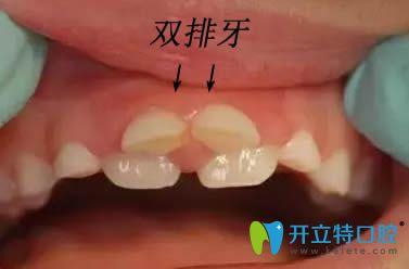 儿童乳牙滞留造成双排牙的图片