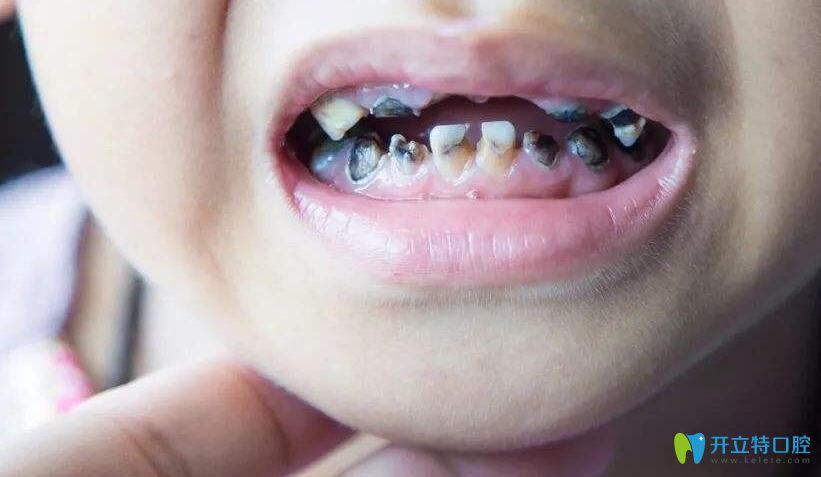 小孩子乳牙烂了该该怎么办