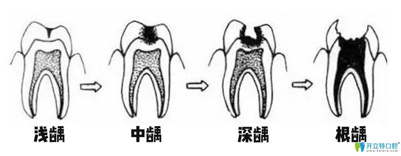 宝宝的蛀牙如何治疗具体要看牙齿龋坏的程度