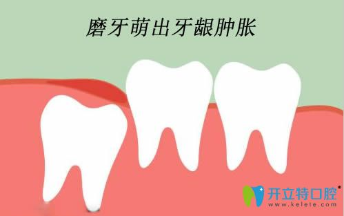 儿童长磨牙牙龈肿破需要怎么处理吗?