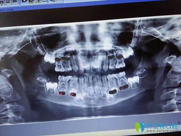 儿童牙片显示图