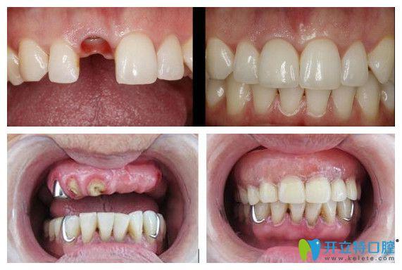 中诺口腔单颗牙种植+半口牙种植真人案例前后效果对比图