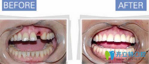 西安诺贝尔单颗牙缺失案例对比效果图