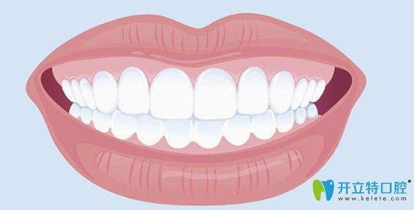 不同材质的牙齿价格不同