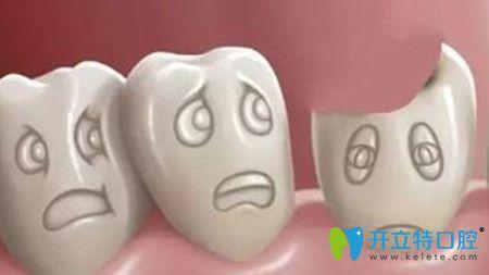 换一个牙多少钱,决定换牙价格的因素是哪些