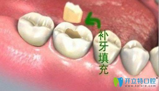 通过儿童补牙全麻的利弊来了解补牙全麻好不好