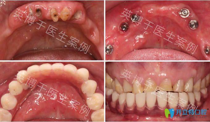 英博口腔于涛副院长半口种植牙案例效果图