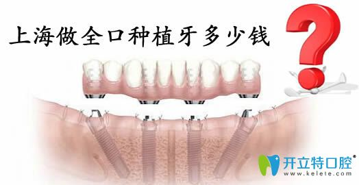 上海英博口腔揭晓全口种植牙需要多少钱