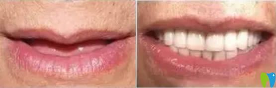 西安诺贝尔口腔李江院长60岁老人全口种植牙前后对比效果