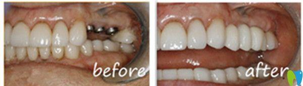 吉林爱齿口腔种植牙前后对比图
