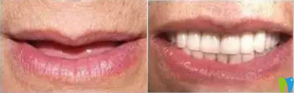 深圳格伦菲尔口腔allon4种植牙真实案例