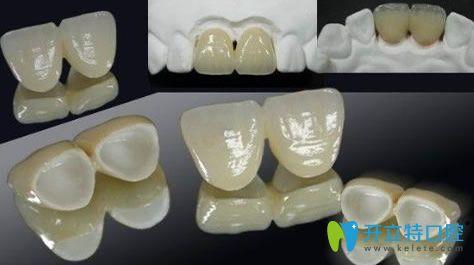临时牙冠多少钱