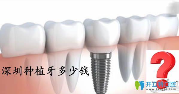深圳种植牙多少钱