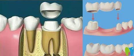 临时牙冠图片
