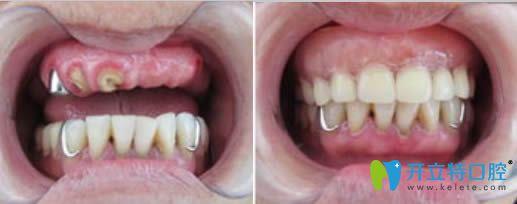 半口种植牙案例效果图