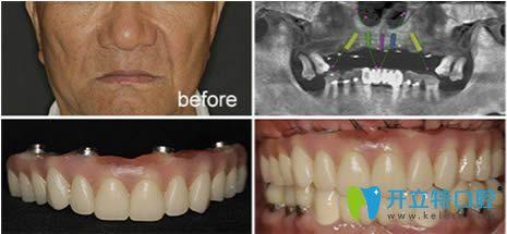 南京博韵口腔全口种植牙及牙齿矫正前后对比案例分享