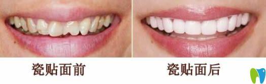 牙齿贴面前后对比效果
