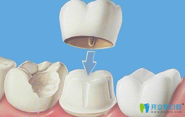 牙齿美容冠矫正技术