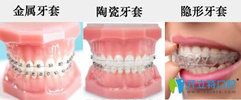公布牙套价格表(包含金属托槽/半隐形陶瓷矫正/隐形矫正)