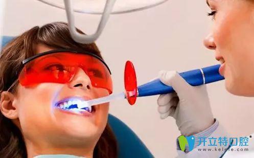 激光牙齿美白