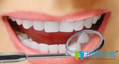 分享激光美白牙齿和冷光美白牙齿的区别