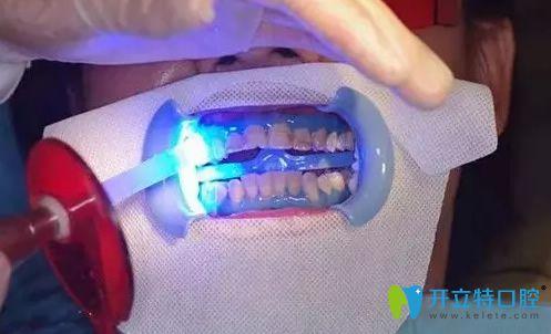 冷光牙齿美白