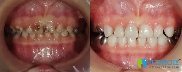 西安中诺口腔儿童龋齿治疗前后对比照